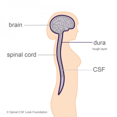 Low pressure headache awareness day spinal csf leak foundation this diagram shows the brain spinal cord csf and the dura mater that holds the fluid in ccuart Gallery