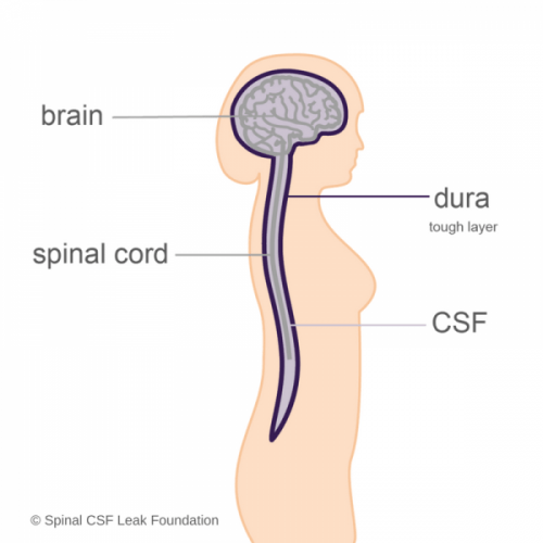 Overview Spinal Csf Leak Foundation